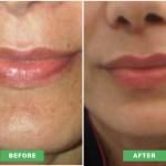 lip-enhancement-new