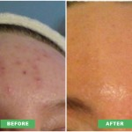skin-peels-for-acne.jpg