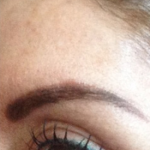After – Muscle relaxing injections to open eye area and reshape the brow